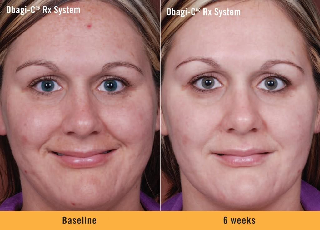 Cosmetic Dermatology Fraser Colorado Medical Winter